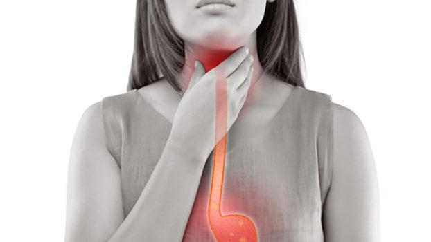 perdita di peso e esofago barrettes