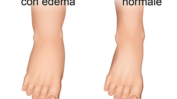 Gonfiore alle caviglie e ai piedi: cause e prevenzione