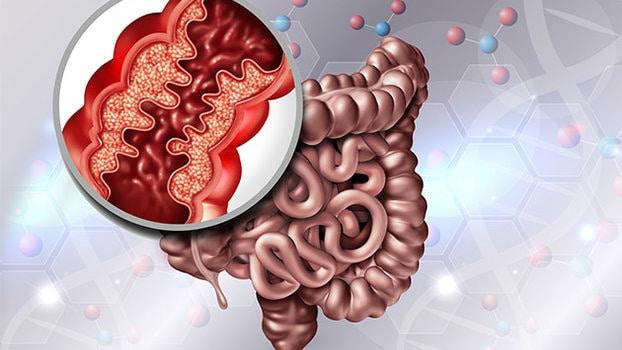 dieta per malattia di crohn