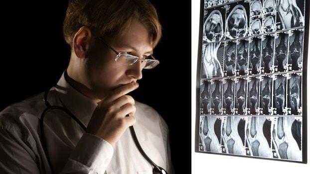carcinoma prostatico e metastasi ossee