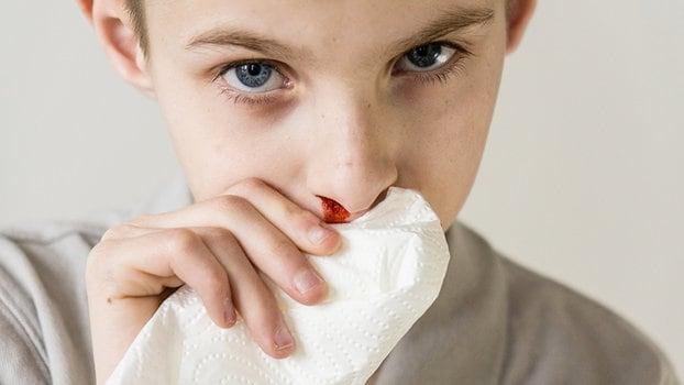 sanguinamento nasale e perdita di peso