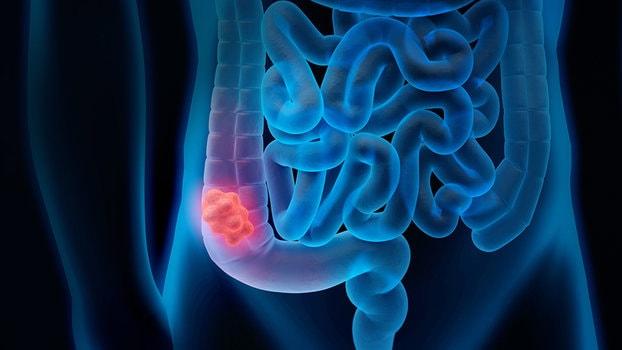 Mal di schiena tumore intestino, diciamolo...